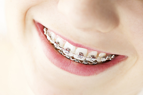 Briarcliff Manor Braces